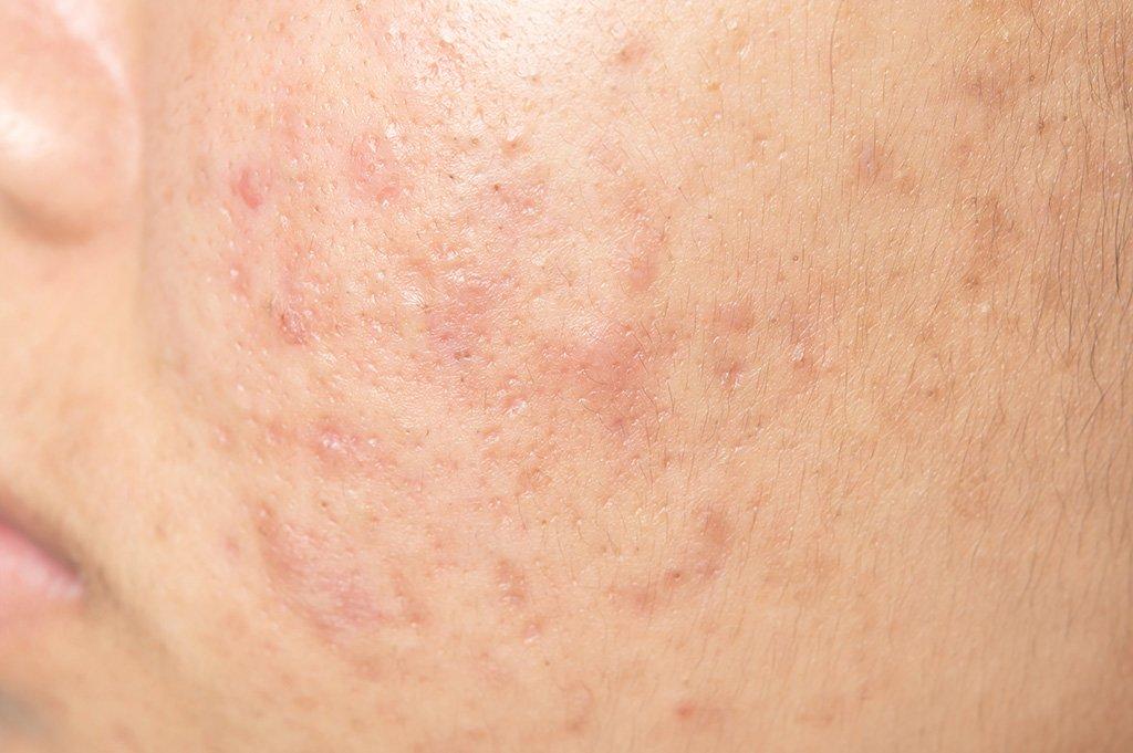 Nessa cosmétiques - traitement acné